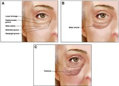 Malar Mounds and Festoons | Aesthetic Surgery Journal | Oxford Academic Malar Bags, Surgery Journal, Facelift Before And After, Under Eye Fillers, Aesthetic Dermatology, Facial Aesthetics, Skincare Dupes, Plastic Surgery, Skin Care