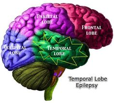 Living with simple and complex partial seizures of the temporal lobe. I have complex partial seizures of the parietal lobe. Temporal Lobe Epilepsy, Occipital Lobe, Seizure Disorder, Brain Anatomy, Epilepsy Awareness, Epilepsy Facts, Epilepsy Types, Seizures, Life Science