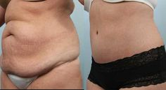 Before and After pictures of a Tummy Tuck Zavell - Abdominoplasty Bariatric Sleeve, Tummy Tucks, Before And After Pictures, Plastic Surgery, Sleeves, Cap Sleeves