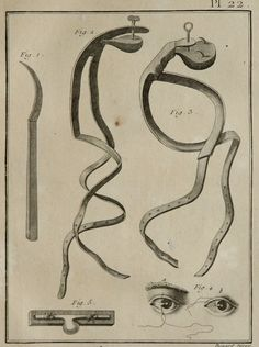 1779 Antique print of SURGERY. OPHTHALMOLOGY. Human Eyes. Surgical Instruments. 235 years old rare Diderot Encyclopaedia copper engraving