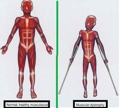 myotonic muscular dystrophy