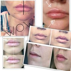 Give your lips an instant boost and perfect your pout. Lip Plumping Balm will help your lips look fuller, moisturized and softer I use it and looove it! Lip Plumping Balm, Lip Balm, Galvanic Spa, Beauty Logo, Healthy Skin Care, Your Lips, Anti Aging Skin Care, Lip Colors, Collagen