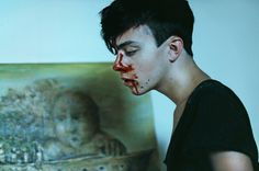 Me by Monika M. Photography (08.28) [blood, nosebleeds, broken nose, bloody]