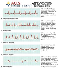 graphic relating to Ekg Practice Strips Printable known as 813 Ideal Nursing visuals within just 2019 Nursing learners, Nurse