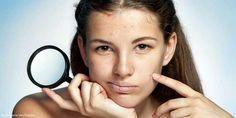 Apfelessig schmeckt nicht nur im Salatdressing, er kann auch für die Hautpflege verwendet werden.