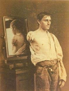 "Civil War, [portrait of a gentleman after amputation]  via Flesh World, ""Masterpieces of Medical Photography"""