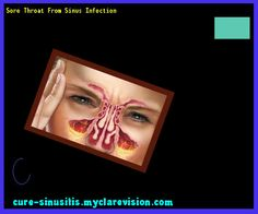 Sore Throat From Sinus Infection 075426 - Cure Sinusitis