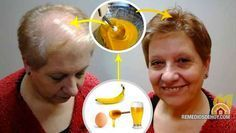 Una receta de RESUCITA CABELLO, mira aquí como hacer esta milagrosa receta...!     El cabello fo...