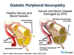 diabetic-peripheral-neuropathy.png (500×375)