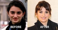 VERY Well done, Penelope. More than 20 years separate these two images of Penelo VERY Well done, Penelope. More than 20 years separate these two images of Penelope Cruz and you are much better off now. Nobody can assure. Acne On Nose, Celebrities Before And After, Celebrities Then And Now, Mode Old School, Facial Cosmetic Surgery, Celebs Without Makeup, Celebrity Plastic Surgery, After Surgery, Makeup Ideas