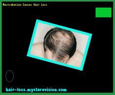 Mastrubation Causes Hair Loss 232854 - Hair Loss Cure!