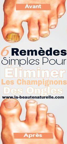 6 simple remedies to remove nail fungus Apple Cider Vinger, Wedding Nails Design, Medical, Nail Fungus, Anti Cellulite, Do Love, School Spirit, Natural Medicine, Health Remedies