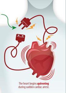 how to avoid sudden cardiac arrest