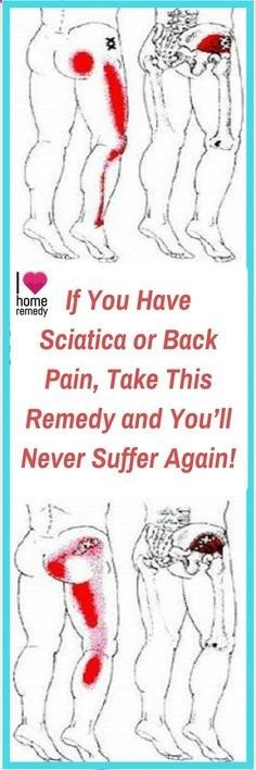 Sciatica pain is usually treated with short-term effect medications, but in this article we're going to present you a natural remedy which will treat your sciatic nerve and make your back pain disappear as well. lower back pain sciatic nerve Sciatica Pain Relief, Sciatic Pain, Sciatic Nerve, Back Pain Relief, Nerve Pain, Sciatica Stretches, Sciatica Massage, Sciatica Symptoms, Chronic Pain