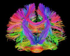 A map of the connections in a human brain.
