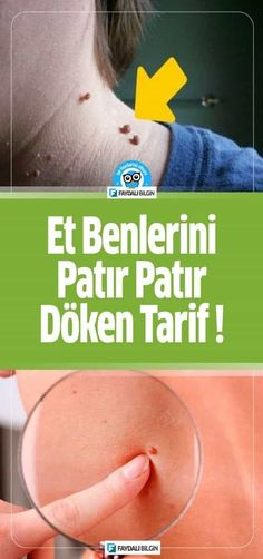 - Useful Information Et Benlerini Patır Patır Döken Tarif! – Useful NEW # Natural Fitness Humor, Health Fitness, Fitness Women, Pimples On Face, Fit Women Bodies, Fiber Foods, Natural Health Remedies, Keto Diet For Beginners, Workout Humor