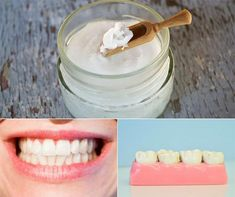 8 Natural Ways to Fight Cavities and Tooth Decay - Home and Gardening Ideas Deep Well Pump, Tooth Enamel, Healthy Teeth, Healthy Life, Clove Oil, Dental Problems, Oil Pulling, Decay