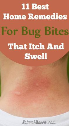 """Stop itching and swelling with these natural home remedies for bug bites. Some y… Stop itching and swellingRead More """"Stop itching and swelling with these natural home remedies for bug bites. Bug Bite Itch Relief, Mosquito Bite Relief, Mosquito Bite Swelling, Bug Bite Swelling, Mosquito Bite Infection, Mosquito Bite Itch, Natural Home Remedies, Natural Healing, Natural Life"""