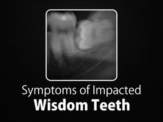 The following symptoms may indicate that the wisdom teeth have erupted, surfaced, and should be removed before they become impacted 1. Pain and infection in the mouth 2. Facial swelling,  3. Swelling of the gumline in the back of the mouth