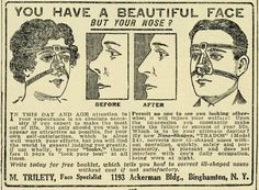 This nose shaper from 1920. See: http://www.pinterest.com/pin/287386019942160504/