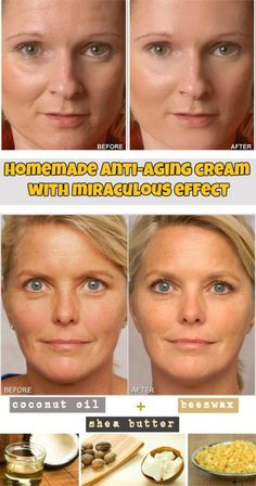 Learn how to make a homemade anti-aging cream with miraculous effect. #antiagingdiy