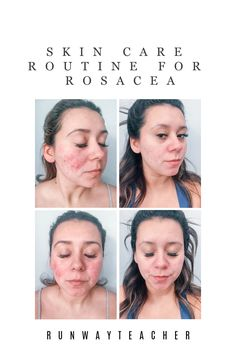 Today, I'm showing you all some vulnerable pictures of my journey with Rosacea and what I have done to improve my skin! But before I jump into the needy greedy I want to share a… Skin Care Routine For Teens, Skin Routine, Acne Rosacea, Acne Skin, Skin Care Specialist, Anti Redness, All Natural Skin Care, Facial Care, Routine