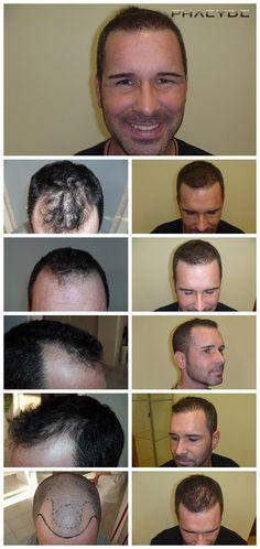 En typisk hårtransplantation med 3500 hår- PHAEYDE Klinik  Zsolt blev miste sine hår på en måde, vi kalder typisk. To templer og en knap midt region. Vi kunne implantere mere, men på patientens anmodning, vi transplanteret 3500 hår, som vi belive gjort ham helt tilfredse. Udført af PHAEYDE Clinic.  http://dk.phaeyde.com/har-implantation