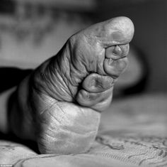Chinese foot binding: Young girls would have their toes bent backwards until they broke, then the arch would be broken and the whole foot bound tightly. Yes it did hurt. But it was 'beautiful' and the men preferred girls with tiny feet. They even wrote books detailing how the 'lotus foot' could be used to sexually pleasure the man when the woman was otherwise unavailable. Oh, so it had a use then? yuk.