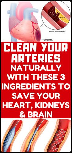 Watch This Video Captivating Clear Blocked Arteries with Natural Health Remedies Ideas. Splendid Clear Blocked Arteries with Natural Health Remedies Ideas. Natural Health Remedies, Herbal Remedies, Cold Remedies, Clean Arteries, Heal Cavities, Reduce Cholesterol, Wellness, Hygiene, Health Matters