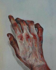 A bruise Hand 2016 Art Sketches, Art Drawings, Arte Sketchbook, Arte Horror, Art Hoe, Pretty Art, Aesthetic Art, Dark Art, Painting & Drawing