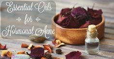 Using essential oils for hormonal acne is a great way to treat calm the skin, treat infection, re-balance, and repair damage and discoloration.