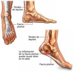 La fascitis plantar es la inflamación del tejido grueso en la planta o parte inferior del pie. Este tejido se denomina fascia plantar y es el que conecta el calcáneo a los dedos y crea el arco del pie