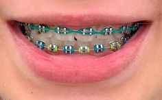 Combinaison de couleurs - Braces Colors For Ches - Braces Braces Smile, Kids Braces, Dental Braces, Teeth Braces, Dental Care, Braces Food, Teeth Implants, Dental Implants, Cute Braces Colors