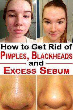 How to get rid of pimples, Blackheads and excess sebum forever.