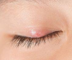 El perejil actúa como agente de purificación para los ojos y ayuda a eliminar los materiales tóxicos. Eso a su vez ayuda en la curación rápida del orzuelo