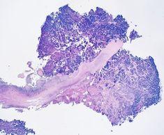 Microscopy of bacterial vegetations on a tricuspid heart valve (IV drug user) via @seattlequinns on Twitter