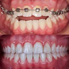 Dental Braces Before and After (New Pictures) Dental Braces, Teeth Braces, Dental Implants, Braces Smile, Braces Before And After, After Braces, Severe Tooth Pain, Teeth Whitening Cost, Dental Costs
