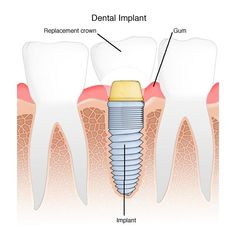 Dental Implant Surgery ~  Phase 1 this week...insertion of the actual implant.