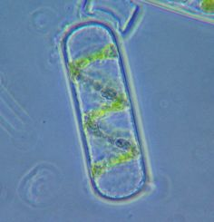 Spirogyra - Wikipedia, the free encyclopedia