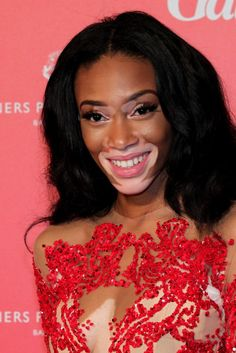 Model With Vitiligo, Winnie Harlow, Wins Beauty Idol Award And Proves That Uniqueness In Beauty Will Prevail