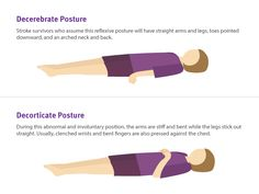 115 best Stroke Recovery images on Pinterest in 2018   Stroke     Decorticate posture is caused by damaged connections between the brain and  spinal cord Another posture