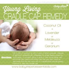 Cradle Cap  Young Living essential oils are therapeutic grade - they are not synthetic, not diluted, organic and safe for your baby.  Order a starter kit to become a wholesale member. Just click the purple Products Tab above to set up your account today. No requirements to buy or sell to be a wholesale member, just use and enjoy your oils. I'll teach you how. Elvie