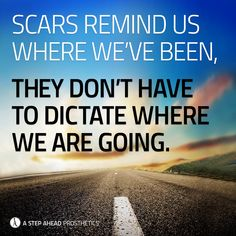 Motivational Quotes For Amputees. prosthetics