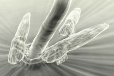 The link between Demodex mites, ocular rosacea and dry eye.