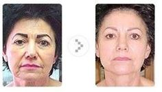 Can defined? Microcurrent facial before and after rather