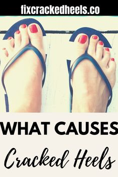 What are the main causes of cracked heels? Which medical conditions causes cracked heels?Read this to find the most common reasons your heels crack. What Causes Cracked Heels, Heel Fissures, Broken Toe, Pedicure Supplies, Cracked Feet, Hammer Toe, Dry Skin Remedies, Closed Toe Shoes, Foot File