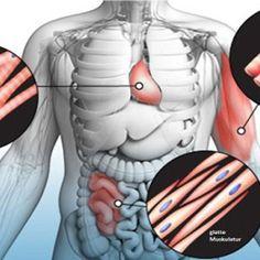 Viele von denen bereits die Schmerzen der Fibromyalgie leiden auch unter myofaszialen Schmerzsyndrom leiden.Syndrommyofaszialen Schmerz ist eineandere Form von chronischen Schmerzen ,die beein…