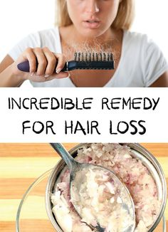 Hair Loss Remedies Hair loss can be caused by a variety of factors from different diseases, poor nutrition, hormonal imbalances and stress.Try this natural mask! Hair Remedies For Growth, Hair Loss Remedies, Hair Growth, Hair Loss Causes, Prevent Hair Loss, Natural Hair Loss Treatment, Natural Treatments, Stop Hair Loss, Hair Loss Women