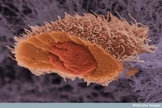 Scanning electron micrograph of the inside of a cancer cell. This cell originates from a squamous cell carcinoma, a type of skin cancer. The cell has been frozen and split open to reveal its nucleus.