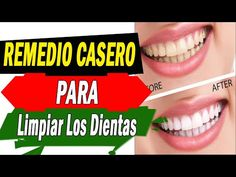 En apenas 3 minutos, esta mezcla promete eliminar la placa dental y sarro | #Belleza - YouTube Health And Nutrition, Health Tips, Health Fitness, Bullet Journal School, Natural Teeth Whitening, Cleaning Recipes, Dental Health, Hacks, Youtube